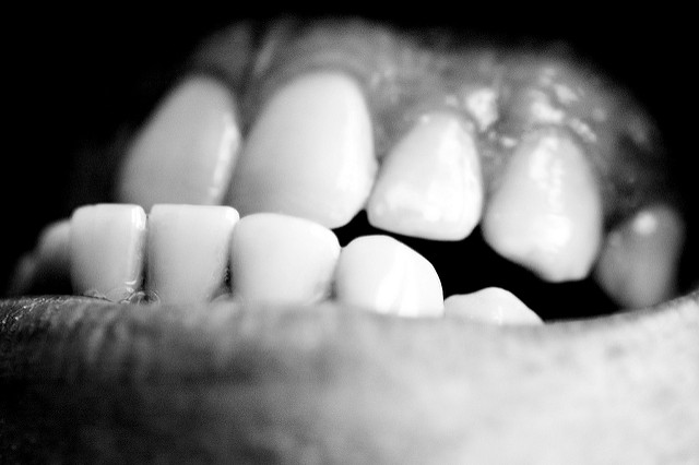 How Can Stress Affect Your Teeth?