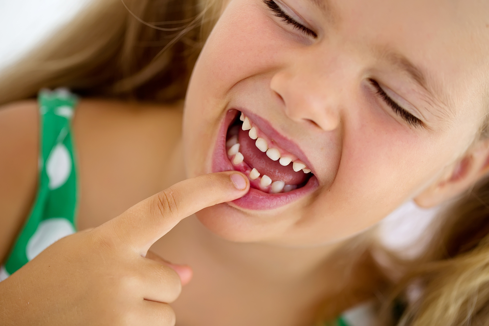 How to Keep Your Kids' Teeth Healthy During the Holidays